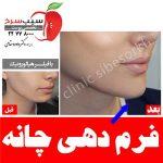 کلینیک زیبایی پوست، مو و لیزر سیب سرخ